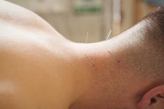 acupunture can relieve migraines and many other headaches naturally