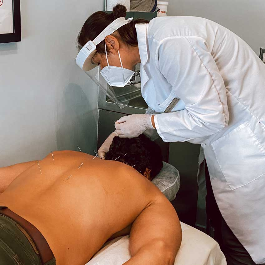 Man getting acupuncture for back pain at Physio Logic NYC in Brooklyn, NY.