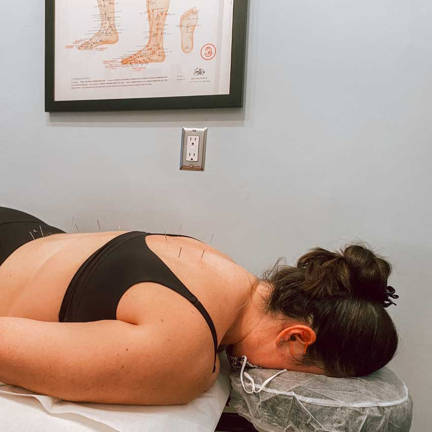 Woman getting acupuncture for weight loss at Physio Logic NYC in Brooklyn, NY.