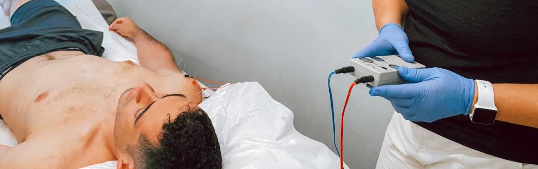 Electroacupuncture being performed at Physio Logic NYC in Downtown Brooklyn, NY.